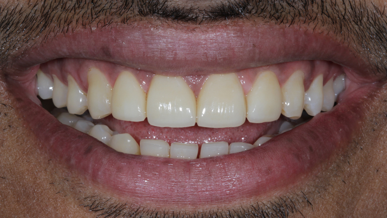 Designing smiles and Changing lives with Porcelain Laminate Veneers