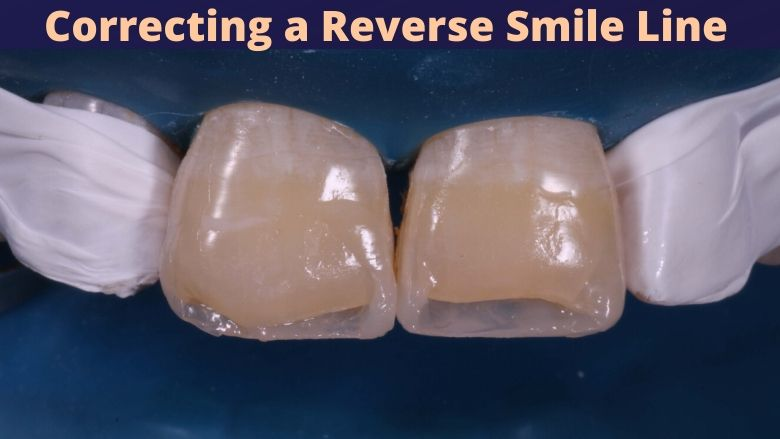 Correction of a Reverse Smile Line – Turning back the clock!