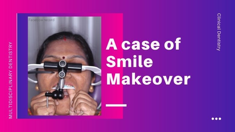A minimally invasive smile makeover: an orthodontic-restorative approach.