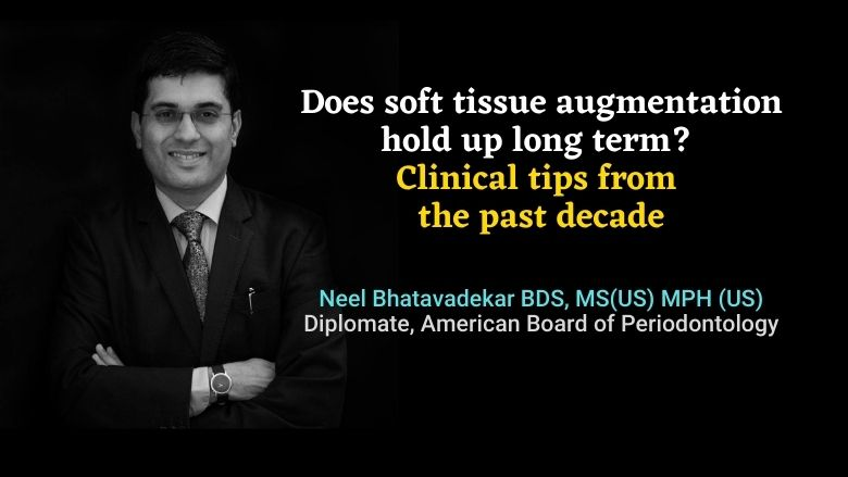Does soft tissue augmentation hold up long term? Clinical tips from the past decade